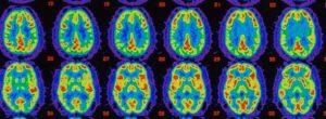 Τι συμβαίνει στον εγκέφαλο μας όταν είμαστε εντελώς σιωπηλοί