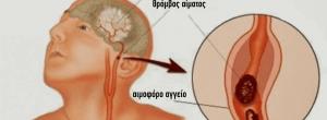 Tι κάνουμε σε ένα εγκεφαλικό; Παίρνει μόνο ένα λεπτό για να διαβάσετε αυτό